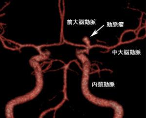 脳動脈瘤の3D-CT
