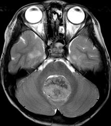 MRI T2WI