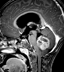 MRI enhanced T1WI sagittal