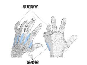 肘部管症候群